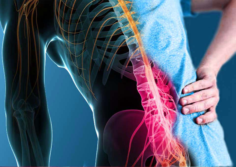 Image of back pain needing home physical therapy
